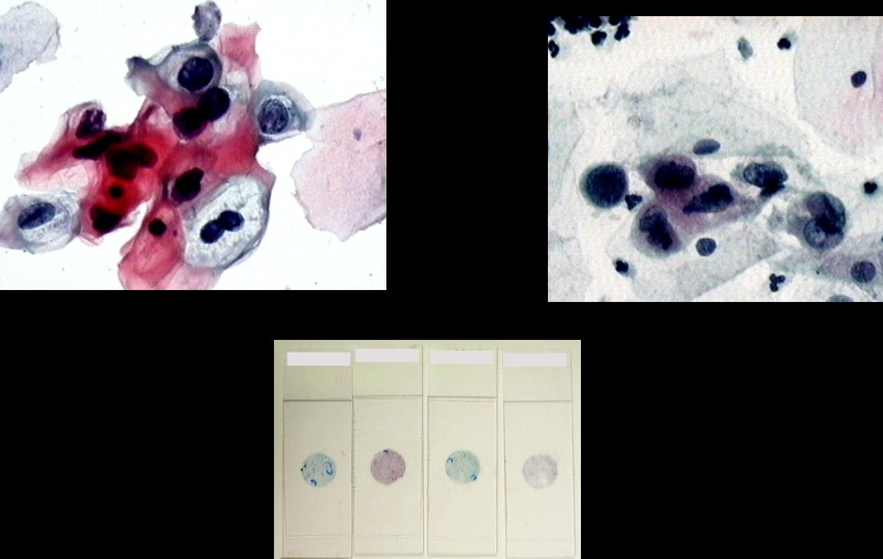 imagenes microscopicas de citologia en base liquida